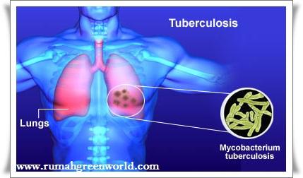 Cara menyembuhkan tbc paru